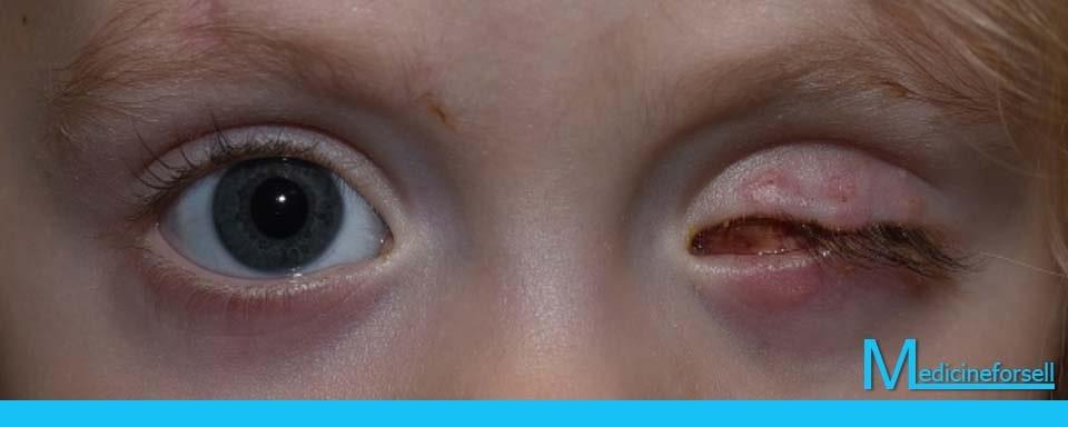 عملية اقتلاع العين Archives Medicineforsell